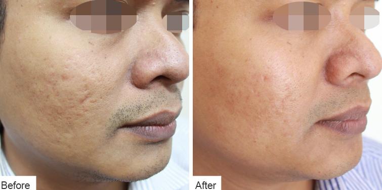 Divine Facelift - Before & After